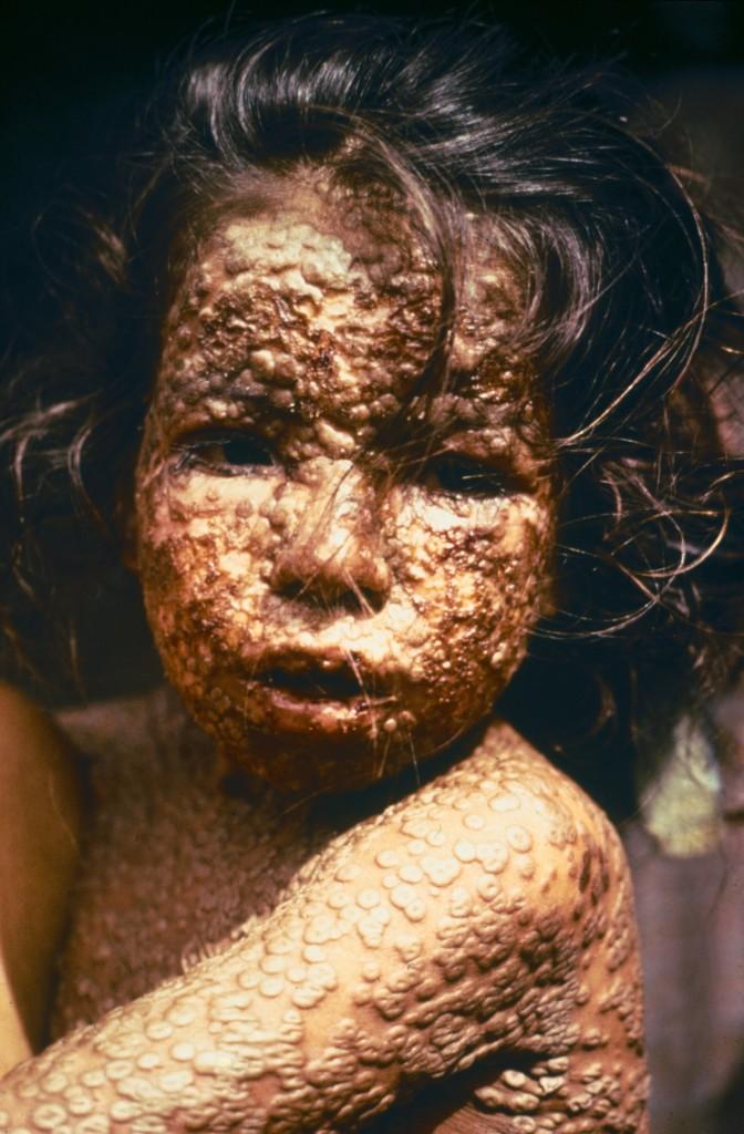 Child_with_Smallpox